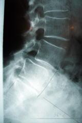 脊柱管狭窄症の例