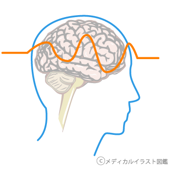 セックスの時に頭が痛い 病院 大阪