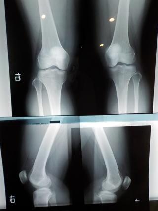 膝が痛い 病院 守口市