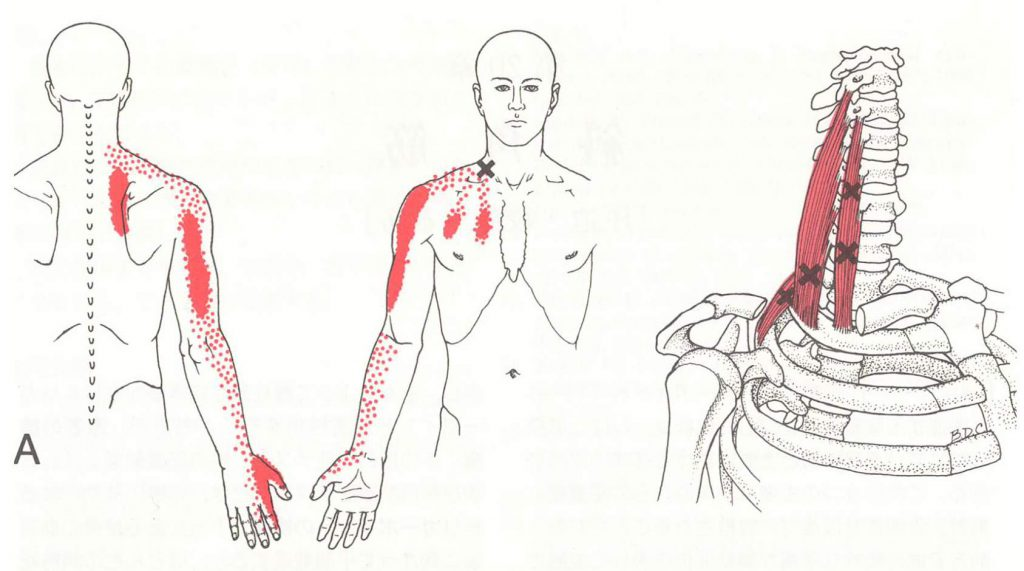 頚椎ヘルニア 治療 寝屋川市